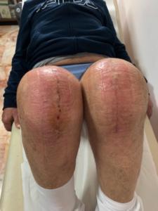 tecniche-suture-chirurgiche-avanzate-francesco-verde